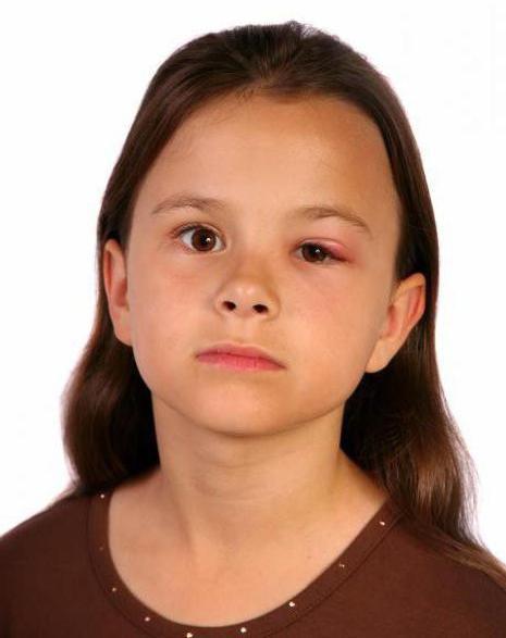 аллергия на лице опухли глаза