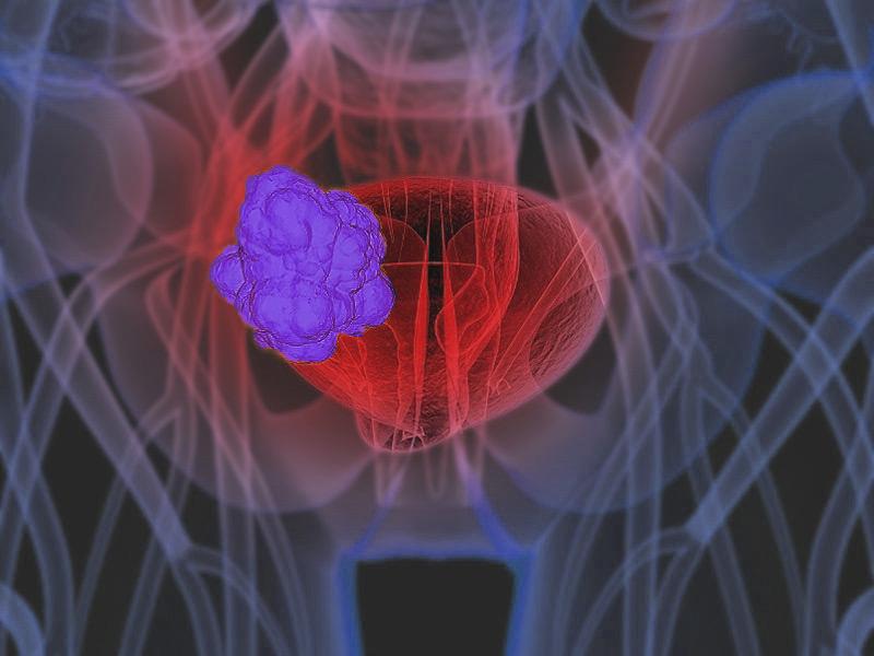 признаки застуженного мочевого пузыря