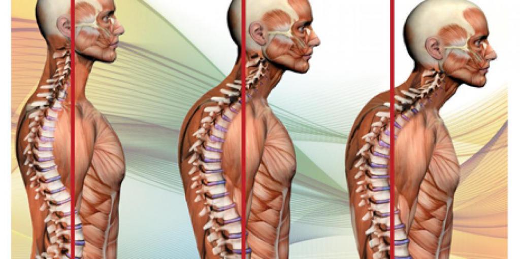 Как избавиться от горба на спине: массаж, специальный комплекс упражнений, регулярные занятия, показания и противопоказания