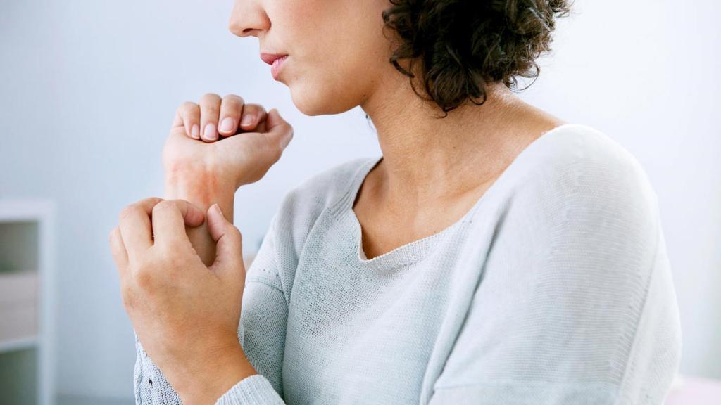 Заразна ли экзема? Передается ли экзема от человека к человеку? Как лечить экзему?