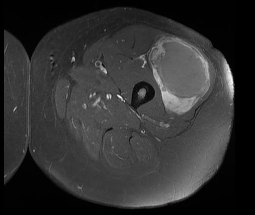 злокачественная опухоль мягких тканей