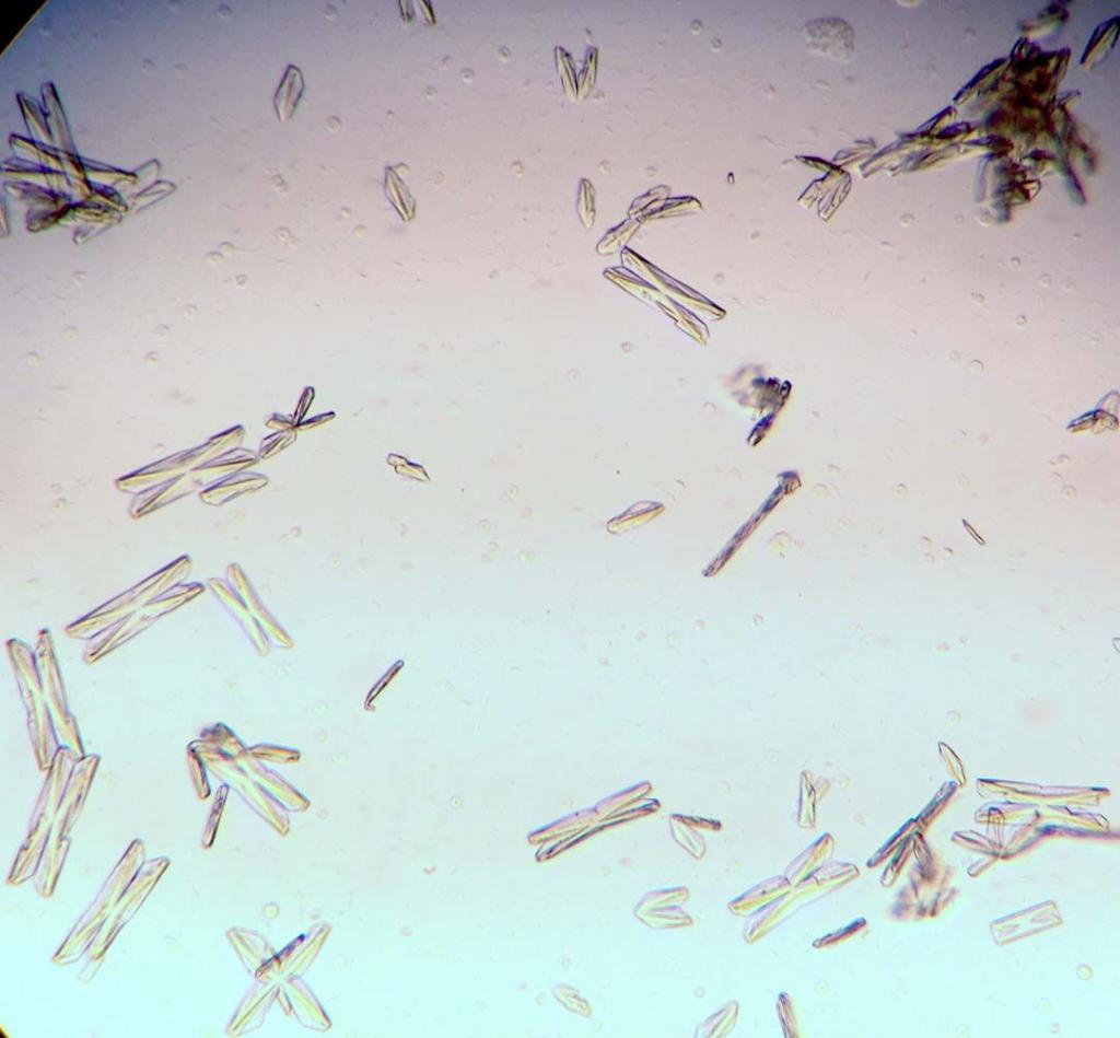Анализ мочи на кристаллурию