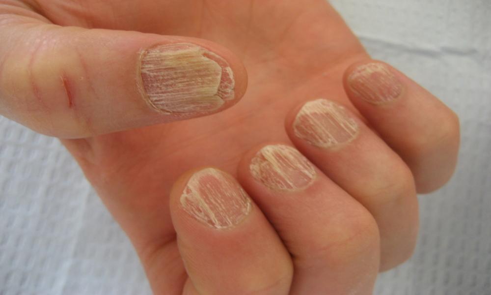 грибок ногтей на ногах начальная стадия