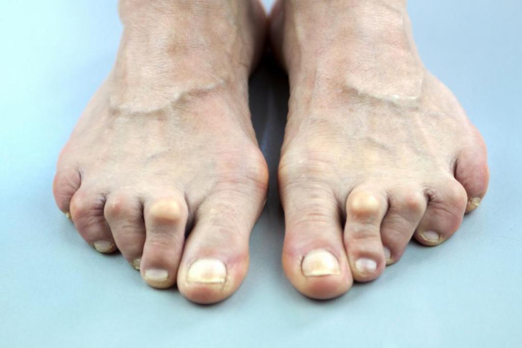 артропатический псориаз на ногах