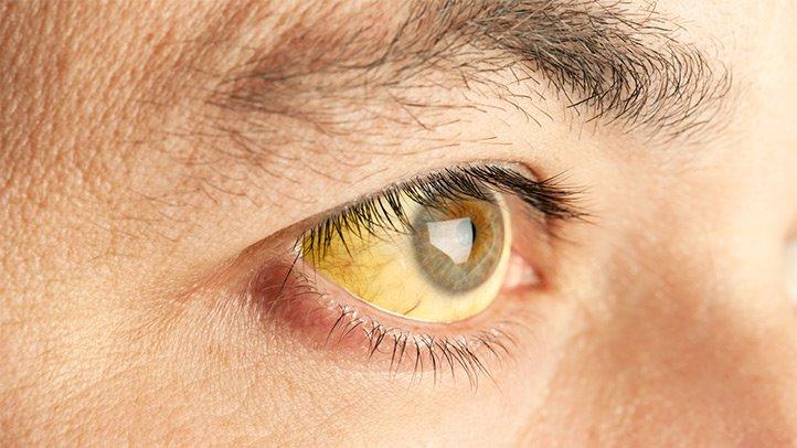 Симптомы гепатита С 3 генотипа