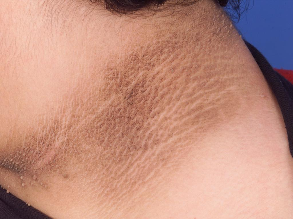 Черные пигментные пятна на теле
