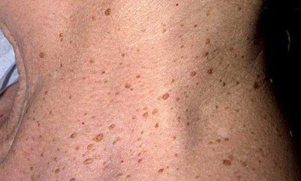 Старческий кератоз кожи лечение 1