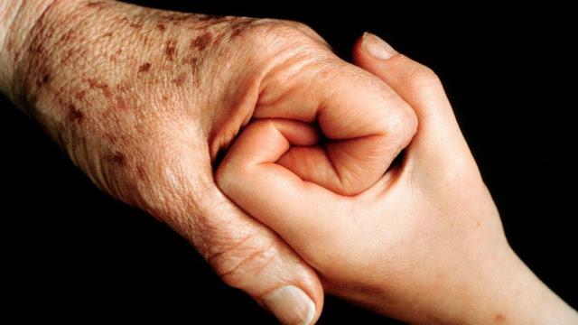 Старческий кератоз кожи лечение 2