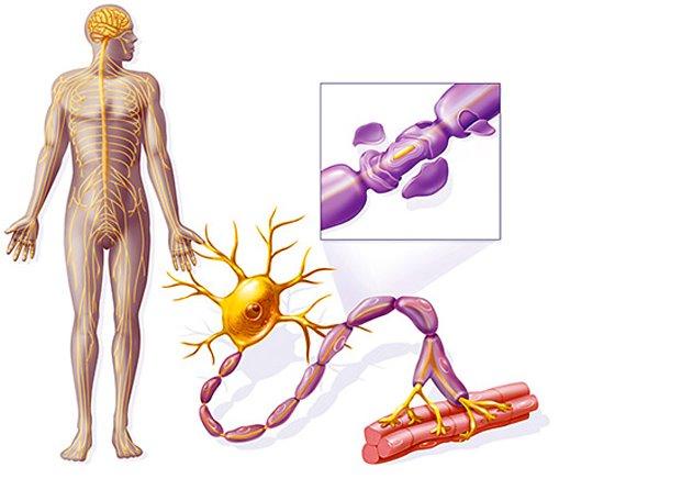 Нерв при рассеянном склерозе