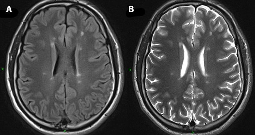 МРТ при рассеянном склерозе: особенности проведения и расшифровка