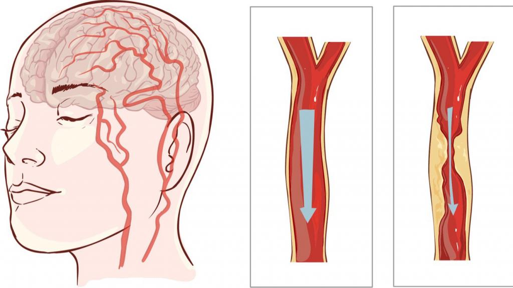 Перекошено лицо: причины, возможные заболевания, лечение