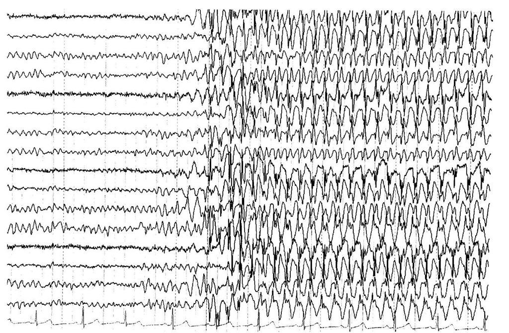 Ээг при эпилепсии в картинках