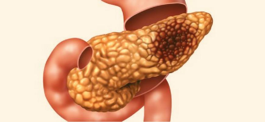 Проблемы с поджелудочной железой: причины, симптомы, диагноз, эффективное лечение,