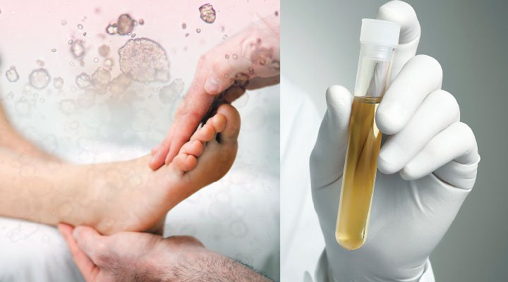 Чем выводят мочевую кислоту