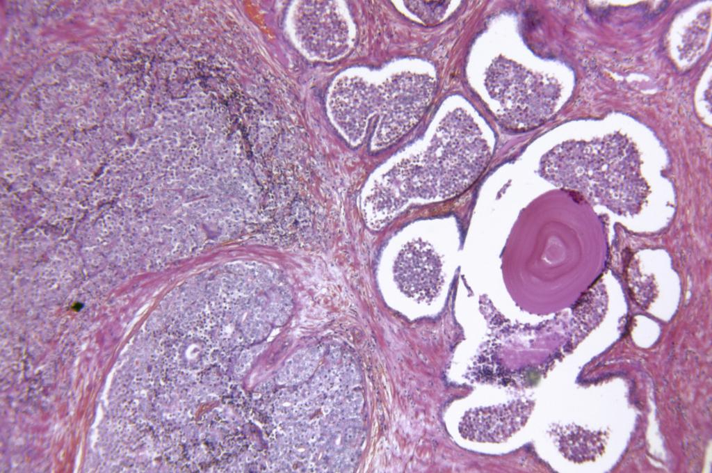 простатит в микроскоп