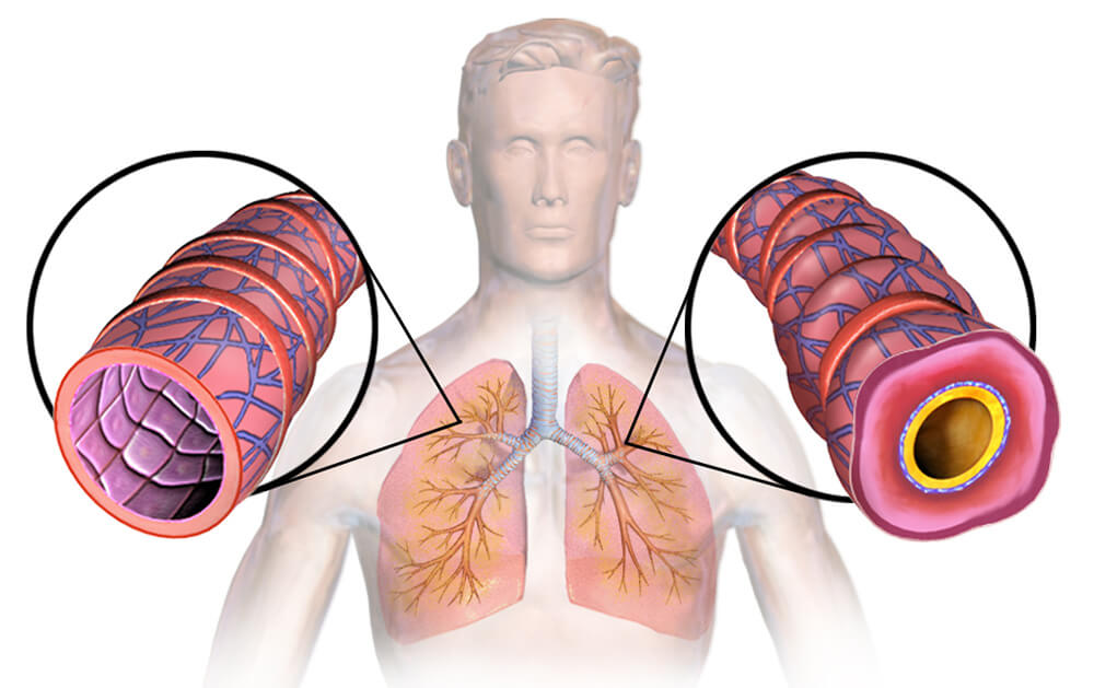 Bronchi of a healthy person and asthma.