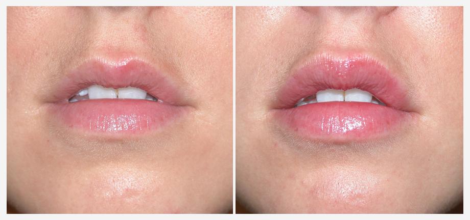 Увеличение губ без инъекций: способы, методы и особенности