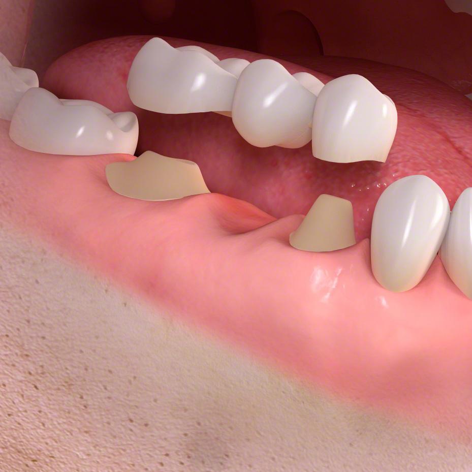 зубной цемент в домашних условиях