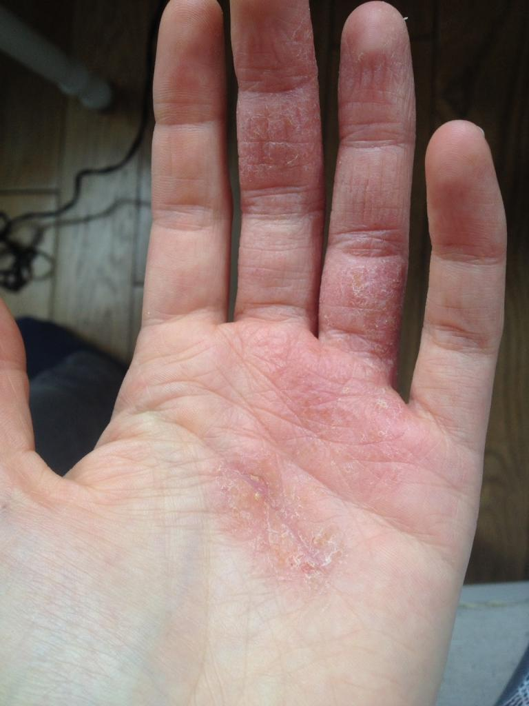 Кожа между пальцами рук шелушится: причины и методы лечения. Советы по уходу за кожей рук
