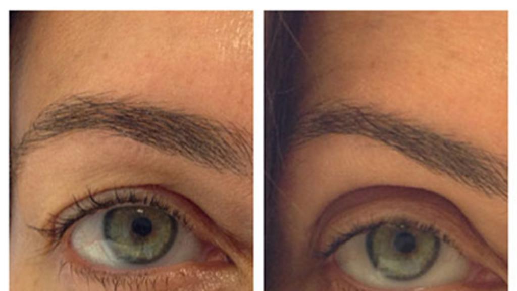 eyelid dropped after Botox photo