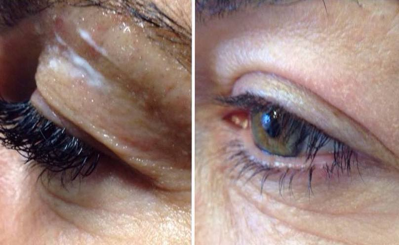 why after Botox eyelids went down