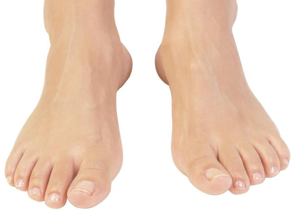 Грибок на большом пальце ноги: симптомы, диагностика, методы лечения, профилактика