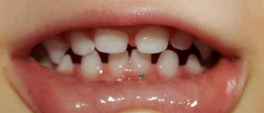 Десна нарастает на зуб у ребенка
