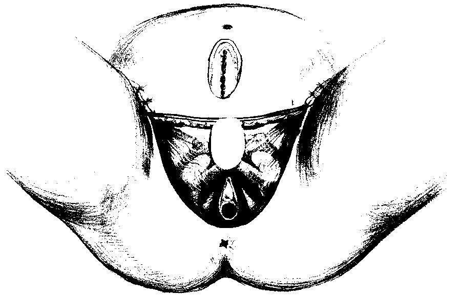 женское белье с нарисованными половыми органами