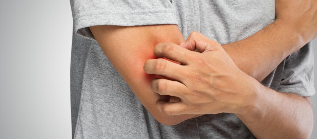 сыпь на локтях и коленях причины и лечение