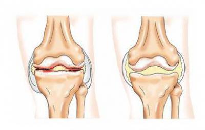 Изображение - Лечение суставов ферматроном 1014575