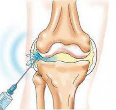 Изображение - Лечение суставов ферматроном 1014578