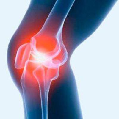Изображение - Лечение суставов ферматроном 1014580
