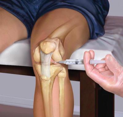 Изображение - Лечение суставов ферматроном 1014581