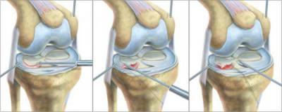Изображение - Операция на коленном суставе при повреждении мениска 1046872