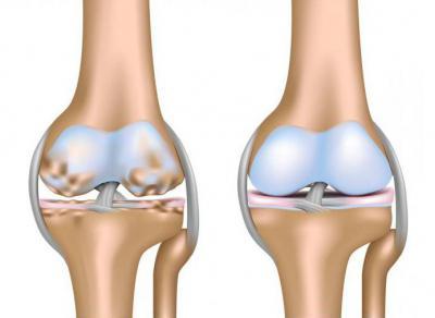 Изображение - Какие уколы делают в сустав колена 1080031