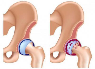 Артроз тазобедренного сустава 1 2 степени боли