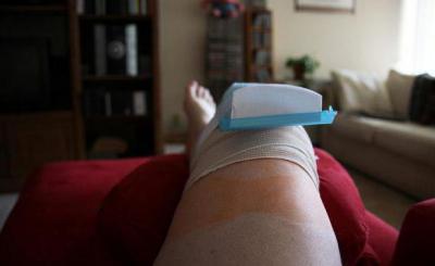 Изображение - Как выглядит искусственный коленный сустав 1217199