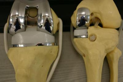 Замена коленного сустава и гемофилия