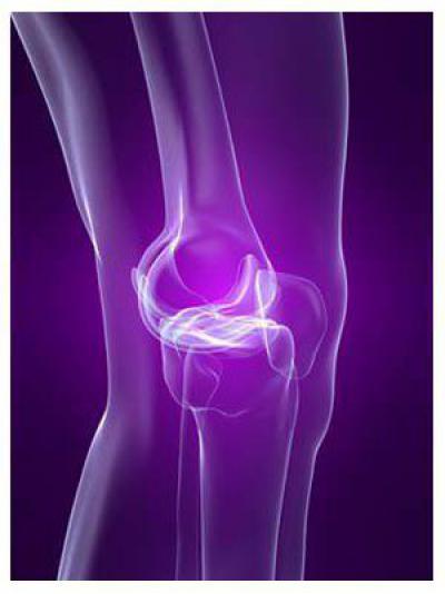 Изображение - Болят связки коленного сустава с внешней стороны 1234590