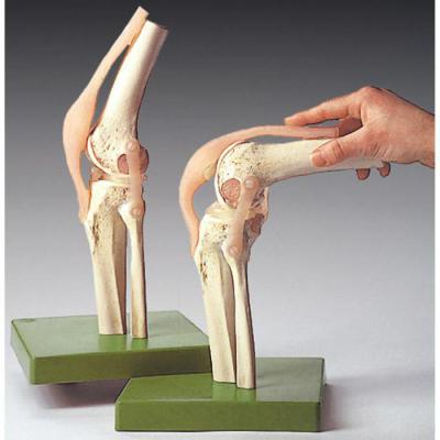Болят мышцы возле коленного сустава
