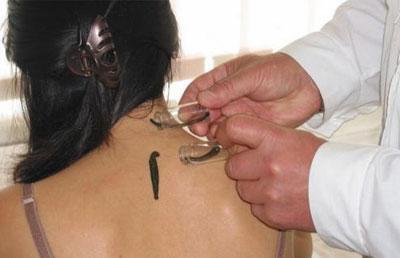 Гирудотерапия для лечения шейного остеохондроза