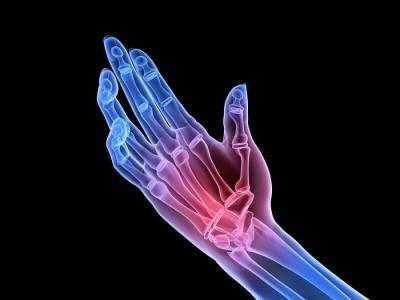 Изображение - Артрит артроз суставов лечение кмв 1256768