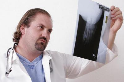 Изображение - Артрит артроз суставов лечение кмв 1256769