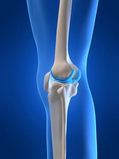 Изображение - Разрыв медиального мениска коленного сустава 1259484