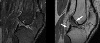 Изображение - Разрыв медиального мениска коленного сустава 1259506