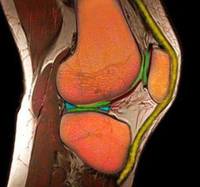 Изображение - Разрыв медиального мениска коленного сустава 1260784