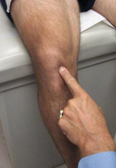 боль в районе колена это махина