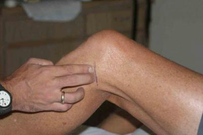 Изображение - Сустав колена болит сбоку 1289244