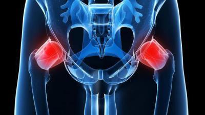 Как делается рентгенография тазобедренных суставов