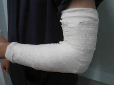 Изображение - Отек кисти после операции на локтевом суставе 1343836